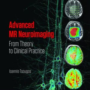 Advanced MR Neuroimaging: From Theory to Clinical Practice