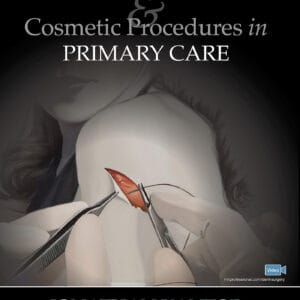Dermatologic Surgery and Cosmetic Procedures in Primary Care Practice - eBook
